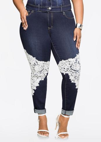 Lace Knee Skinny Jean